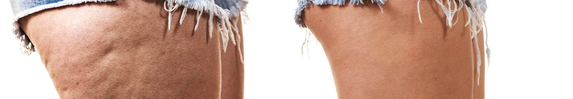Faszientraining gegen Cellulite